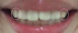 1316770733820歯